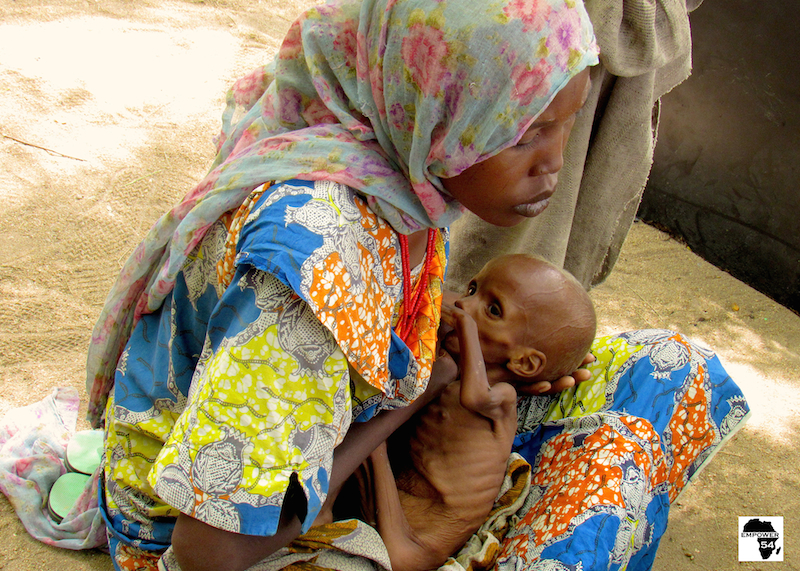 Malnourished baby with mother site
