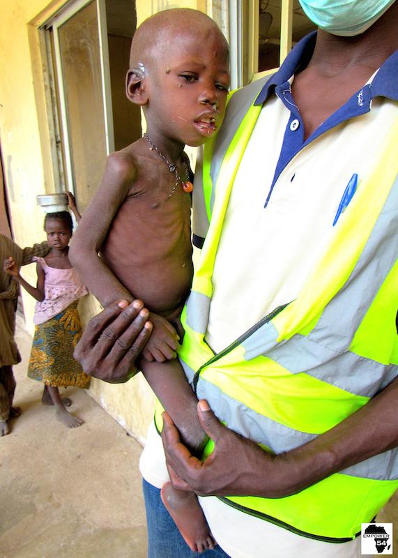 Malnourished boy A site