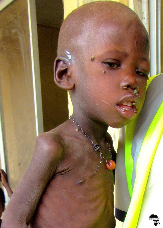 Malnourished boy B site