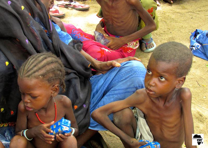 Malnourished children site