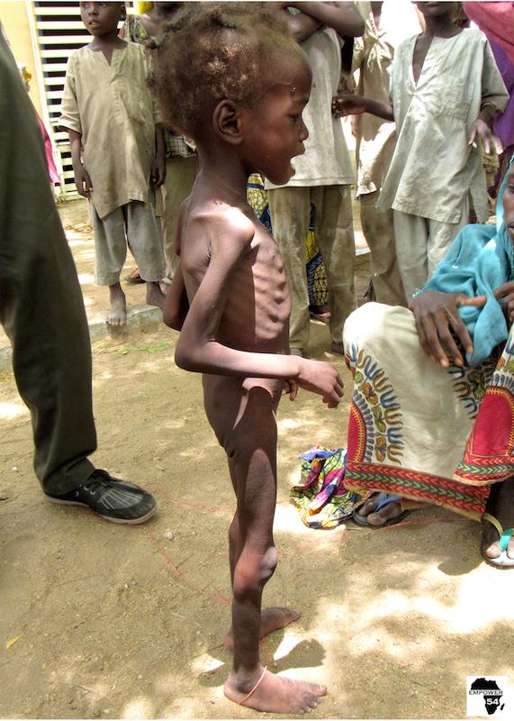 Malnourished girl site