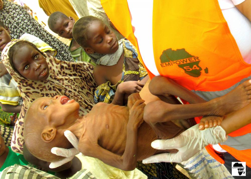 1,800 severely malnourished children evacuated for treatment
